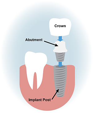 dental implant cartoon graphic